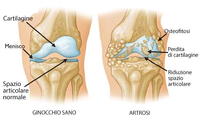 artrosi ginocchio marco capuzzo
