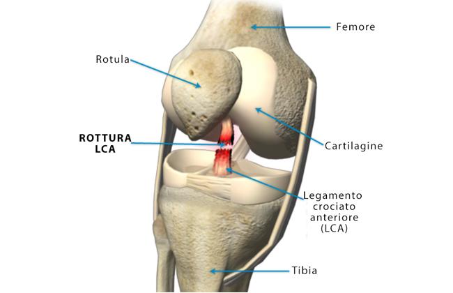 Legamento crociato del ginocchio: rottura, sintomi e cura
