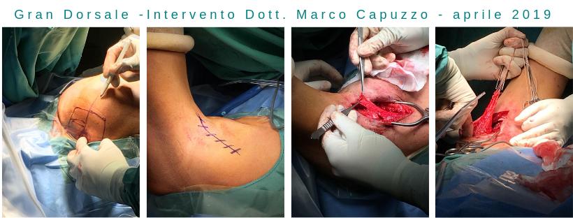 Copia di INTERVENTO DOTT. MARCO CAPUZZO (2)